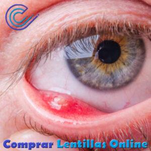 El orzuelo es una infección bacteriana en el párpado